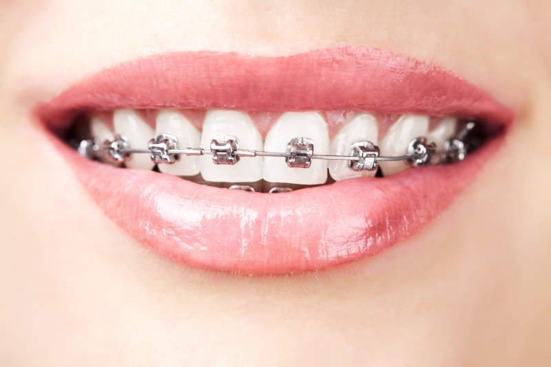 metal braces located along the top and bottom teeth