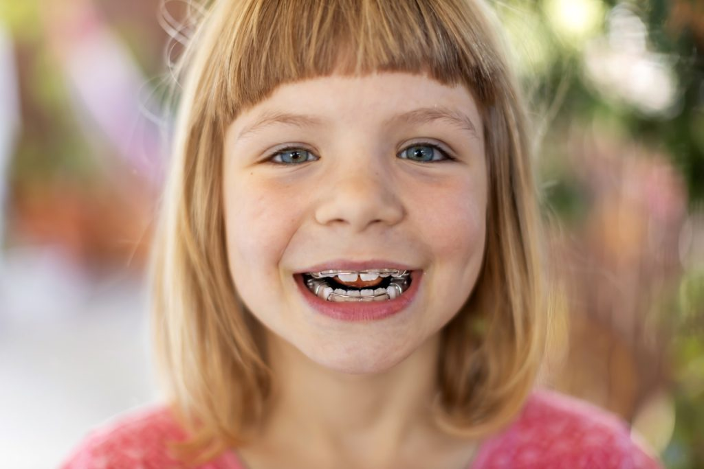 Kid with braces smiling